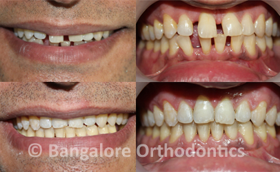 Teeth gaps closed with clear ceramic braces