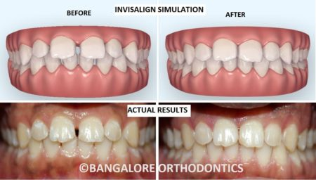 Before & After Invisalign Gaps Treatment