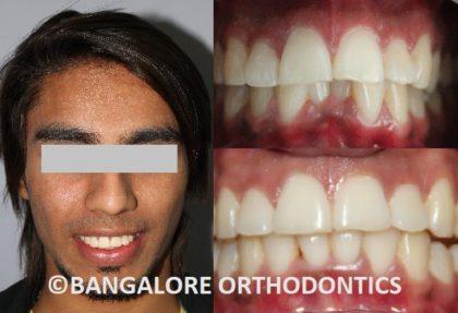 bangaloreorthodontics-invisiblealigners-crowdedteeth