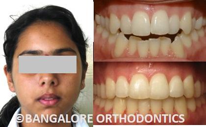 bangaloreorthodontics-invisiblealigners-crowding