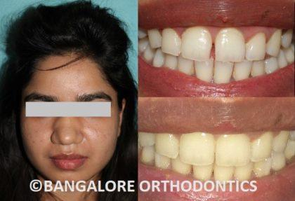 bangaloreorthodontics-invisiblealigners-gaps