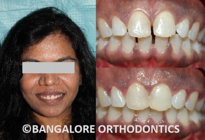 bangaloreorthodontics-invisiblealigners-gapsinteeth