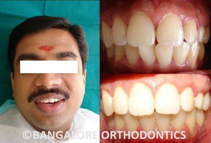 bangaloreorthodontics-invisiblealigners-misalignedteeth