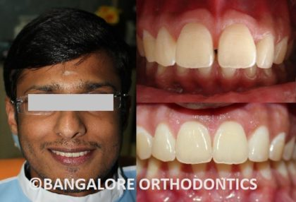 bangaloreorthodontics-invisiblealigners-protrudedteeth