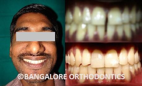 bangaloreorthodontics-invisiblealigners-teeth gaps