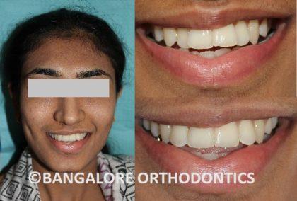 bangaloreorthodontics-metalbraces-crowding