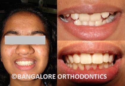 bangaloreorthodontics-metalbraces-deepbite