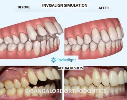 bangalore-invisalign-openbite case
