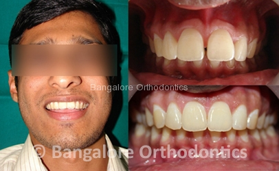 Bangalore Orthodontics Dental braces & Invisalign Provider