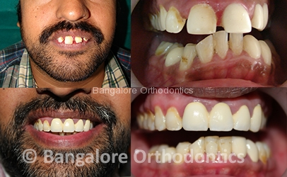 Damon Braces Bangalore Orthodontics