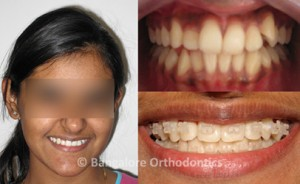 Ceramin-braces-case1-all