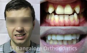 Teeth-alignment-with-selfligating-braces