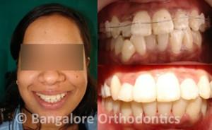 ceramic-braces-case1