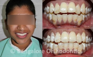 irregular-teeth-with-openbite