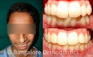 protruded-case-2-metal-braces