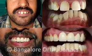 protruded-teeth-case1-damon-braces
