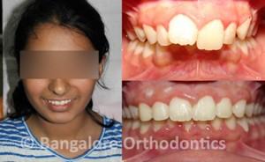 protruded-teeth-case1-metal-braces