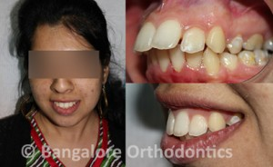 protruding-teeth-case (1)